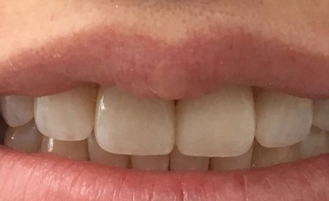 Dental Veneers Wollongong
